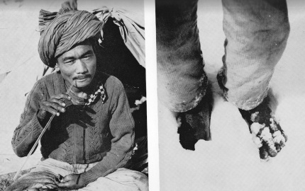 The Silver Hut pilgrim: eating a pipette (left), and showing his bare feet.